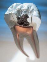 Segni di denti marci