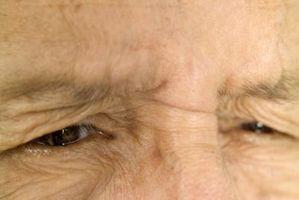 Effetti collaterali di Xeloda per gli occhi