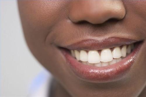 Come sbiancare i denti senza Prodotti