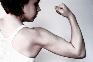 Rotatori Sindrome Cuff & Complex Regional Pain Syndrome