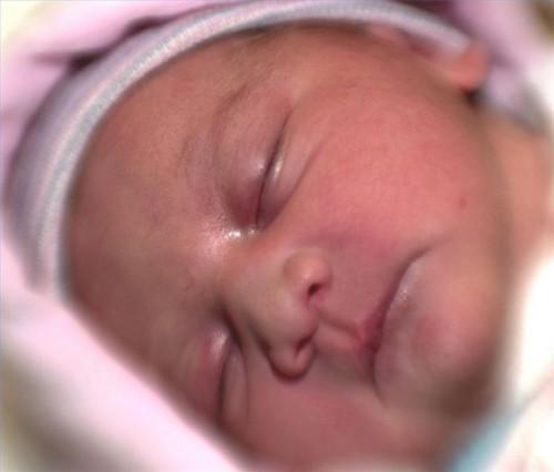 Newborn perdita di peso dopo la nascita