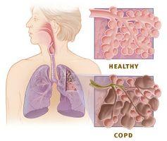 Trattamenti nebulizzatore per la BPCO