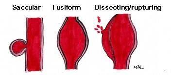 Tipi di aneurismi