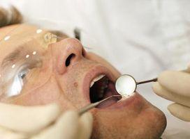 Nevralgia occipitale denti Dolore