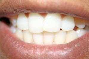 Come funziona un dentista Installare una corona?